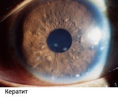 Увеиты зрение