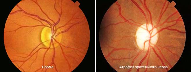 Атрофия диска зрительного нерва