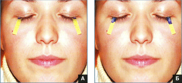 Синдром сухого глаза фото