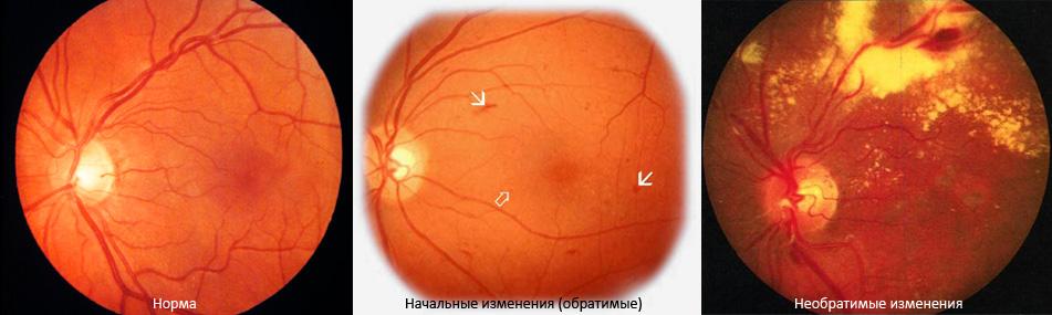 Диабетическая ретинопатия описание