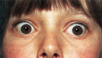 Отечный экзофтальм симптомы