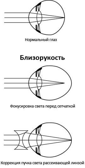 Близорукость миопия